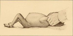 نفخ نوزاد